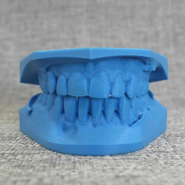 Impressora 3d odontologia