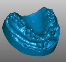Scanner 3d odontologia